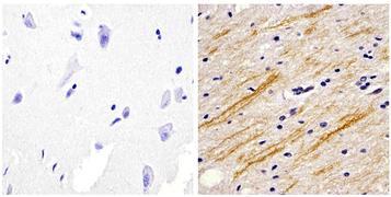 Neurofilament-M Antibody (13-0700)