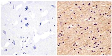 Neurofilament-M Antibody (34-1000)