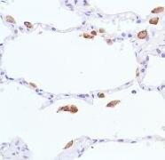 iNOS Antibody (MA5-16422)
