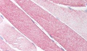 TACR2 Antibody (PA5-33969)