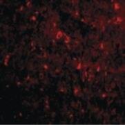 Nogo-A Antibody (PA5-20366)