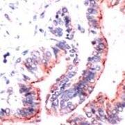 Occludin Antibody (PA1-39440)