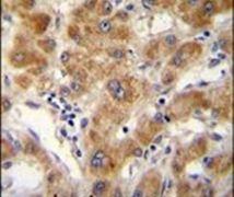 ODF3B Antibody (PA5-24301)