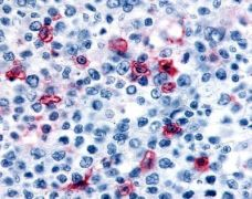 HRH4 Antibody (OPA1-15360)