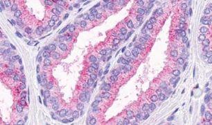 OR51E1 Antibody (PA5-34054)