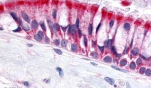 OR6N1 Antibody (PA5-34058)