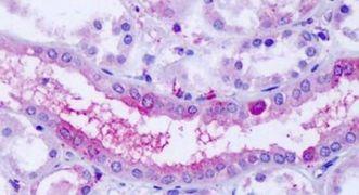 OXGR1 Antibody (PA5-32960)