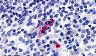 P2Y13 Antibody (PA5-34084)