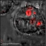 Detection Of phagocytosis in MMM cells using pHrodo™ Red Zymosan Bioparticles®