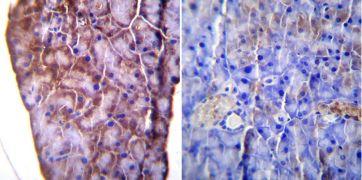 KDEL Antibody (PA1-013)