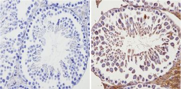 ADORA2A Antibody (PA1-042)