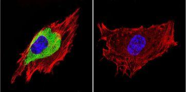 Caveolin 3 Antibody (PA1-066)
