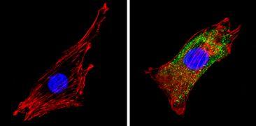 COPII Antibody (PA1-069A)