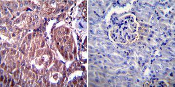 RAGE Antibody (PA1-075)