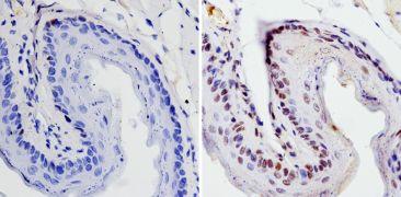 SOX2 Antibody (PA1-094X)