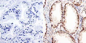 GATA2 Antibody (PA1-100)