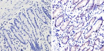 GATA4 Antibody (PA1-102X)