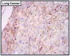 EGFR Antibody (PA1-1110)