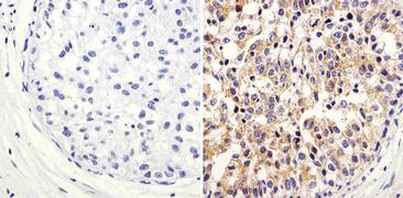 ARF1 Antibody (PA1-127)