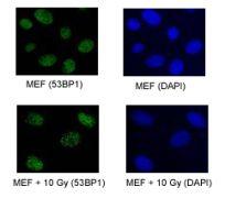 53BP1 Antibody (PA1-16565)