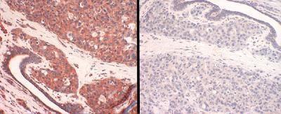 CTR1 Antibody (PA1-16586)