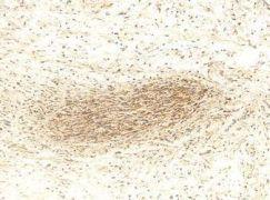 MMP2 Antibody (PA1-16667)