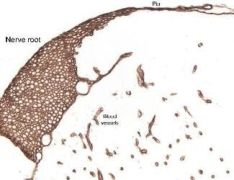 Laminin Antibody (PA1-16730)