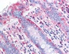 ChREBP Antibody (PA1-16806)