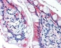 SLC7A11 Antibody (PA1-16893)