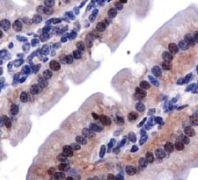 LOX Antibody (PA1-16989)