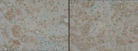 TNIK Antibody (PA1-20639)