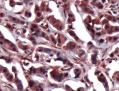 ERK2 Antibody (PA1-21016)