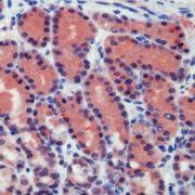 Caspase 8 Antibody (PA1-21140)