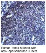 Topoisomerase II beta Antibody (PA1-21150)