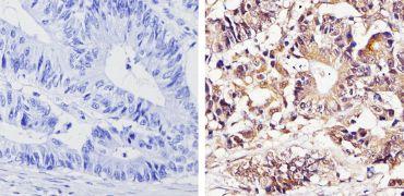 THRA Antibody (PA1-211A)