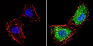 THRB Antibody (PA1-213A)