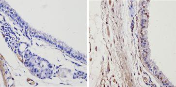 THRA Antibody (PA1-216)
