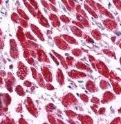 EAP30 Antibody (PA1-24395)