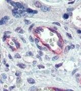 Claudin 23 Antibody (PA1-24429)