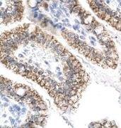 AEBP1 Antibody (PA1-24440)