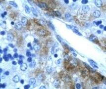 GATA3 Antibody (PA1-24465)