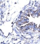 SMAD6 Antibody (PA1-24467)