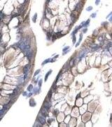 MOX1 Antibody (PA1-24468)