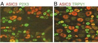 P2X3 Antibody (PA1-24625)