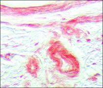 FGFR1 Antibody (PA1-24762)