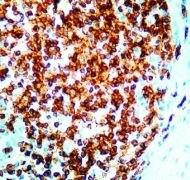 CD3e Antibody (PA1-26255)