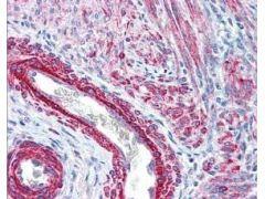Phospho-MYL1 (Ser20) Antibody (PA1-26470)