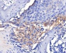 IL-6 Antibody (PA1-26811)