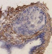 Desmin Antibody (PA1-27003)