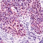 CDKN2A Antibody (PA1-28218)